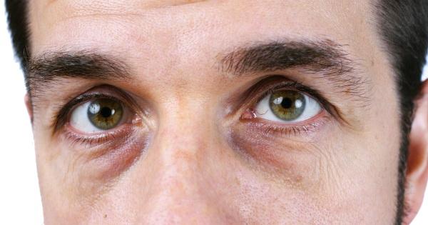 5 formas de evitar las ojeras y la hinchazón